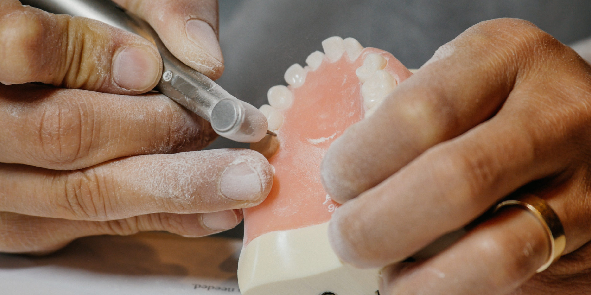 Hands preparing a tooth on a typodont for a pediatric zirconia crown placement.