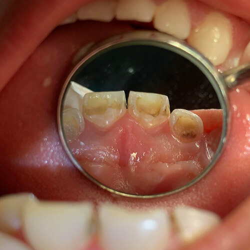 A Dental Humanitarian Mission for the Whole Family 12
