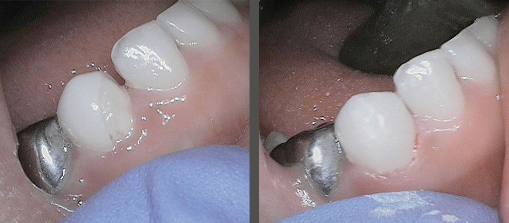 Restorative Options for a Fractured Zirconia Crown 1