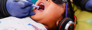 Allergens and Fluoride with Wonderful Dental