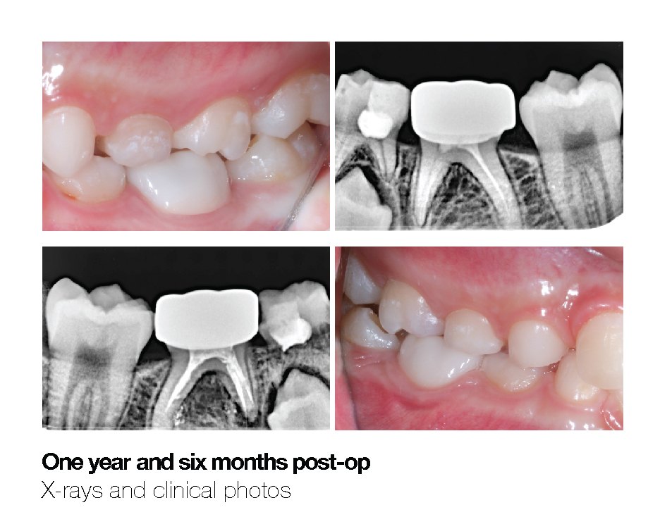Making a Permanent Difference with Zirconia Crowns (5-Year Follow Up) 8