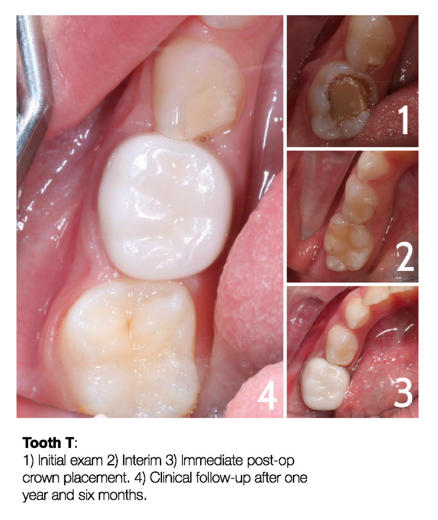 Making a Permanent Difference with Zirconia Crowns (5-Year Follow Up) 7