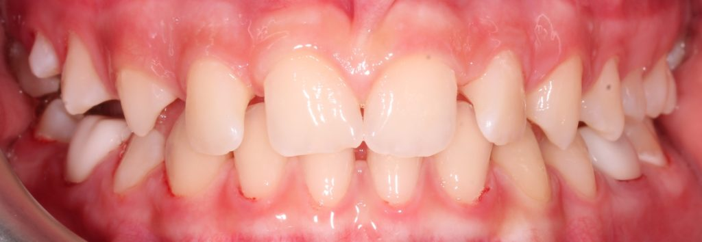 Making a Permanent Difference with Zirconia Crowns (5-Year Follow Up) 9