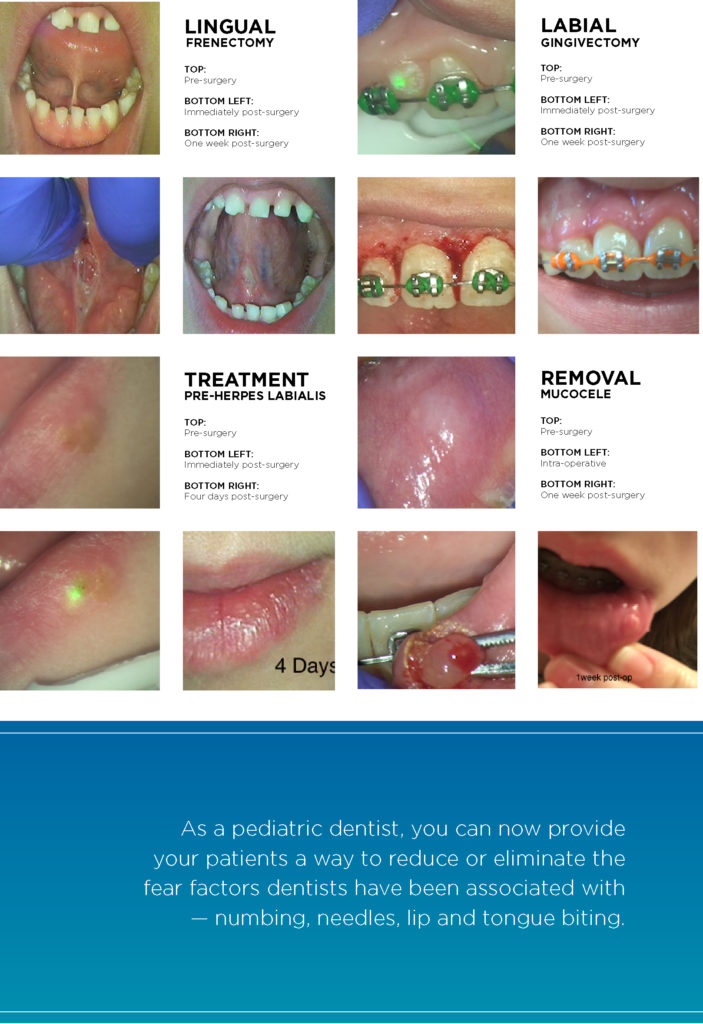 Investing in an All-tissue Laser for Your Dental Practice 4