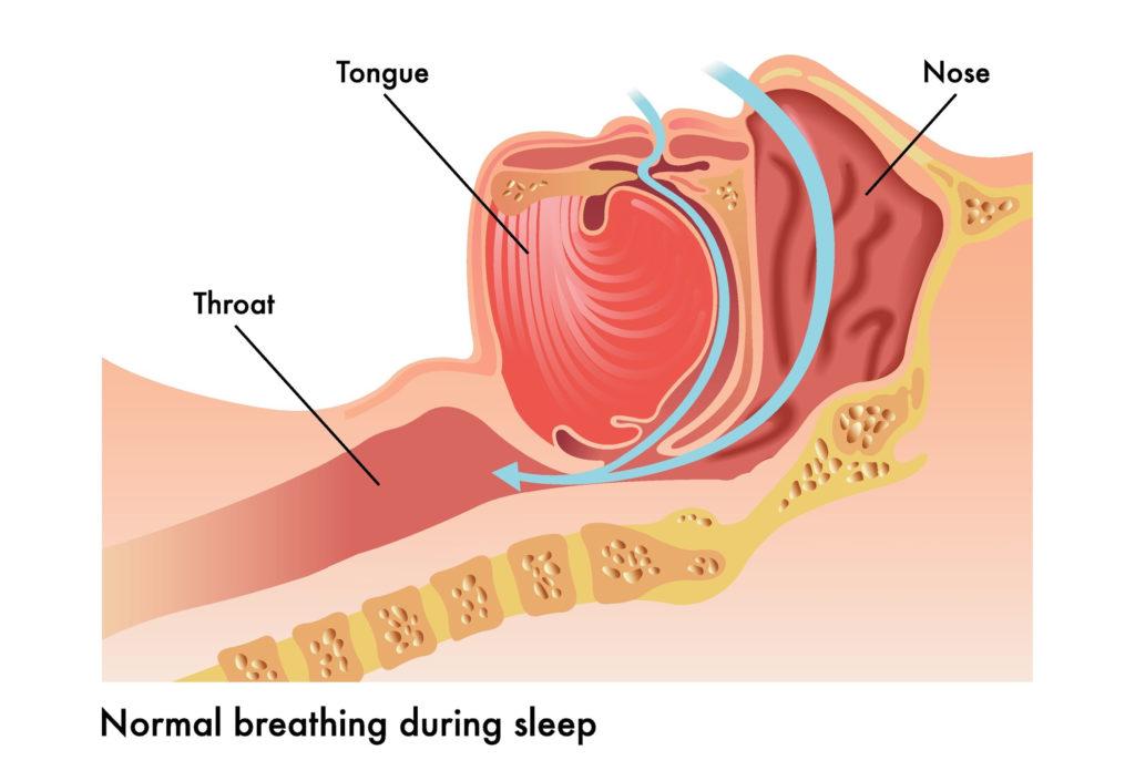 Obstructive Sleep Apnea in Pediatric Patients 3