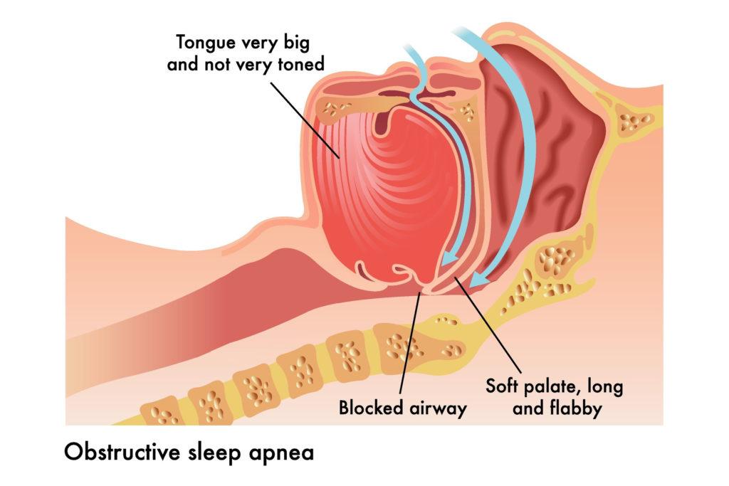 Obstructive Sleep Apnea in Pediatric Patients 4