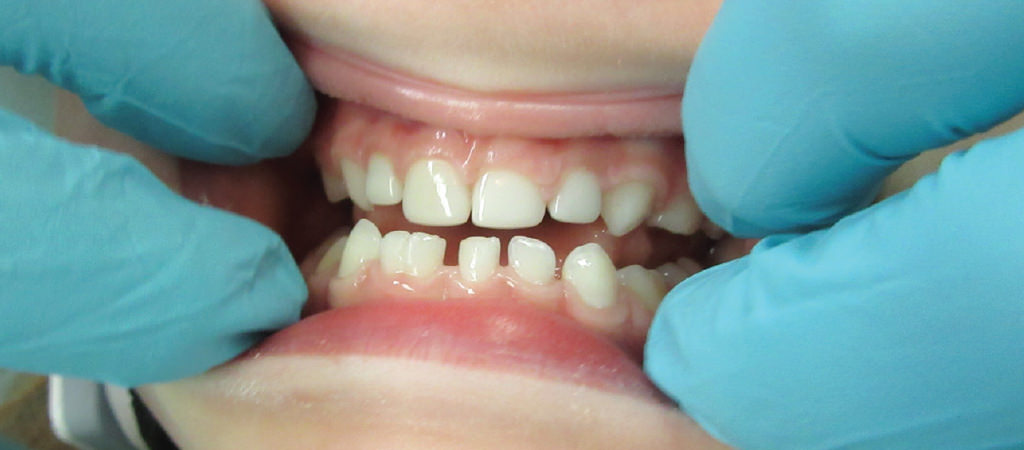 Treating Class 3 Malocclusions with Zirconia Crowns 1