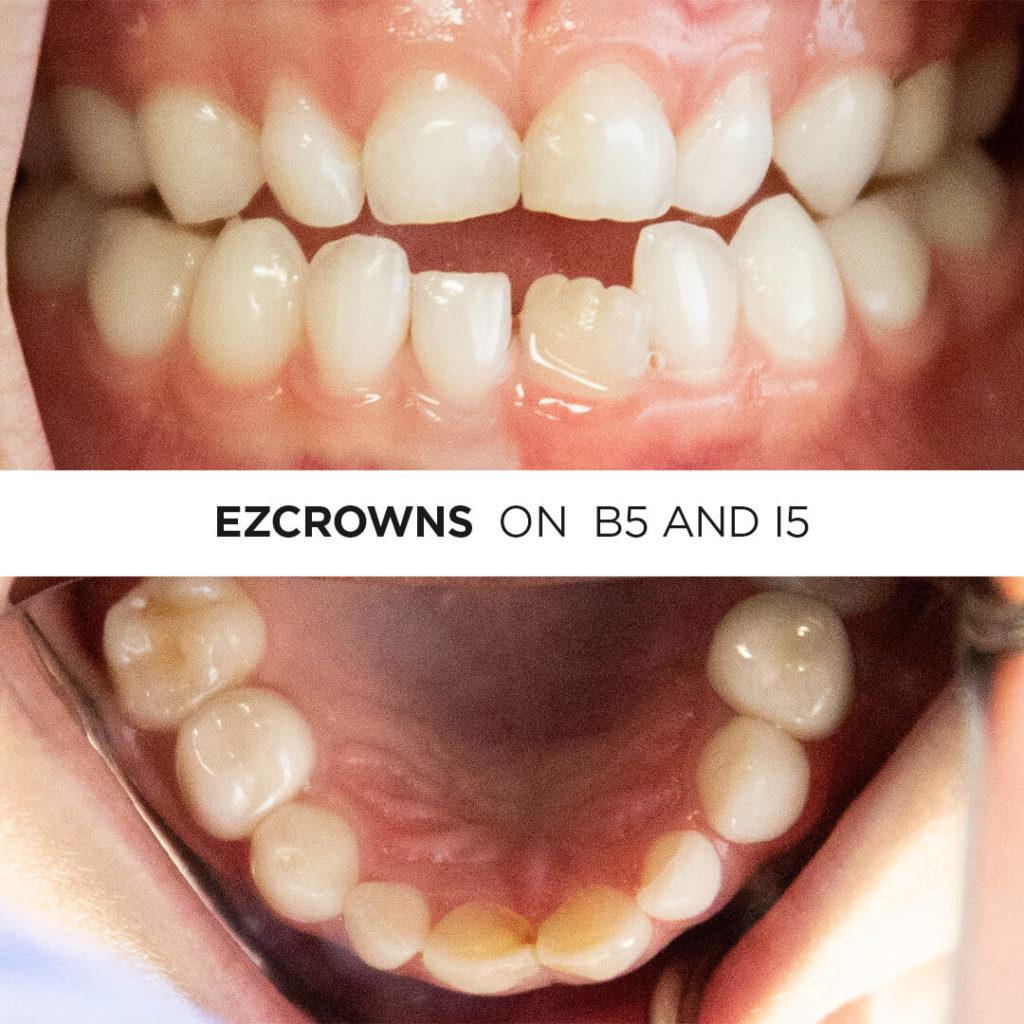 EZCrown Testimonial - The Story Behind Fancy Looking Sam 2